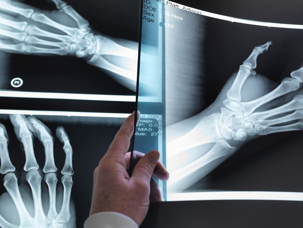 Doctors hand holding up hand xray in hospital